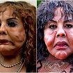 Pseudo chirurg zdeformował jej twarz wstrzykując cement i uszczelniacz do opon. Jak wygląda dziś?