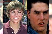 Gwiazdy przed wizytą u dentysty - nie wszyscy urodzili się z hollywoodzkim uśmiechem...