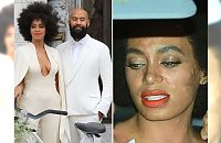 Co tak naprawdę stało się z twarzą Solange podczas ceremonii ślubnej?