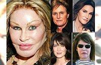 Największe i zarazem najdroższe operacje plastyczne gwiazd Hollywood. Czy wyszło im na dobre?