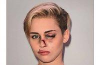 Madonna, Aneglina Jolie i inne gwiazdy dotkliwie pobite! Co się stało?