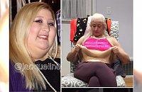 """Zrzuciła prawie 160 kilogramów, teraz walczy ze """"słoniowymi"""" nogami. Takiego czegoś jeszcze nie widzieliście!"""