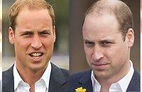 Książę William poddał się łysinie i... OGOLIŁ GŁOWĘ! Jak wygląda teraz?