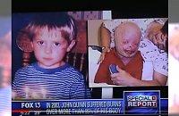 Był małym chłopcem, gdy doznał poparzeń 95 proc. ciała. Przez całe lata czuł się POTWOREM. Teraz dzielnie odsłonił twarz