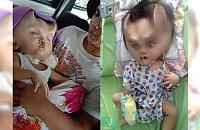 Temu chłopczykowi wskutek spartaczonej operacji rosną ROGI! Mama nie zgodziła się na poprawę jego wyglądu...