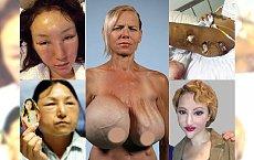 Operacje plastyczne zmieniły tych ludzi w potwory! Nieudane operacje zniekształciły ich do końca życia