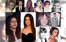 Kiedyś wyglądali bardzo zwyczajnie, a teraz... Zobacz, jak wpływa na ludzi sława i duże pieniądze. SZOOK!