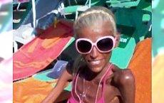 Przeraźliwie chude dziewczyny - czy to jest anoreksja ?