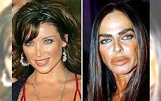 13 fatalnych przypadków, kiedy operacje plastyczne zniszczyły prawdziwe piękno. Co oni ze sobą zrobili?!