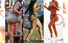 Cellulit, zapadnięte implanty, efekt pieluchy - tak naprawdę wyglądają