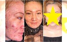 Makijażystka do zadań specjalnych. Maluje kobiety z silnym trądzikiem, bliznami, poparzeniami. Efekty są NIESAMOWITE!