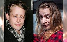Oto 19 szokujących przykładów na to, co dzieje się z człowiekiem pod wpływem tego uzależnienia od narkotyków! [DRASTYCZNE ZMIANY!]