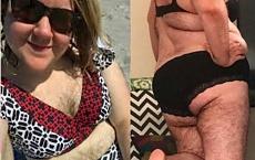 Ta kobieta cierpi na hirsutyzm. Oto, jak wygląda jej ciało bez depilacji! SZOKUJĄCE ZDJĘCIA