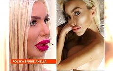 Co się stało z monstrualnymi ustami Anelli?! Ostatnie zdjęcie mocno zaskakuje