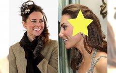 """Księżna Kate Middleton ma na głowie DUŻĄ BLIZNĘ! """"Bardzo POWAŻNA operacja""""!"""