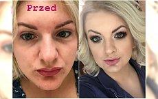 """Karolina Plachimowicz z """"Projekt Lady"""" pochwaliła się nowym nosem. Widzicie jakąś różnicę?"""