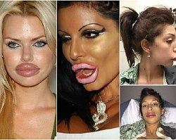 Ofiary powiększania ust - przesadziły z wypełniaczami