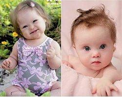 Te dzieci są niewiarygodnie urocze mimo swojej choroby. Dlaczego nie ma ich w reklamach?