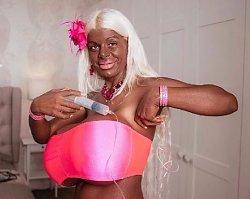 """Pamiętacie """"czarną Barbie""""? Chce kupić... podnośnik do biustu. Zobaczcie, jak POMPUJE swoje olbrzymie piersi"""