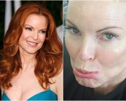 """Co się stało z piękną Bree Van De Kamp  z """"Gotowych na wszystko""""?! Marcia Cross wyznała, że to przez chorobę"""
