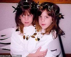 Siostry bliźniaczki zostały.... braćmi. SZOKUJĄCA przemiana płci
