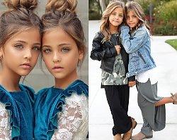 a17d8440574b5d Najpiękniejsze bliźniaczki to wschodzące gwiazdy Instagrama.