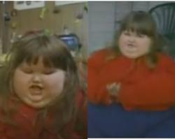 Lekarze nie mogli uwierzyć! Dziewczynka miała tylko 8 lat, a ważyła prawie 200 kilogramów!