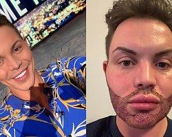 Celebryta zdecydował się na przeszczep brody, żeby nie porównywano go więcej do ludzkiego Kena! A oto, co odpowiedział HEJTEROM...
