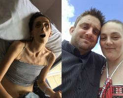 Mąż opublikował zdjęcia UMIERAJĄCEJ żony. To apel do wszystkich kobiet