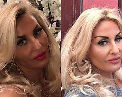 Dagmara Kaźmierska pokazała zdjęcie ze szpitala po wypadku! Widać sporą ranę na twarzy