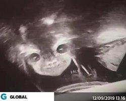 """Pokazała zdjęcie z USG. """"Lekarz zapewnił, że wygląda normalnie"""""""