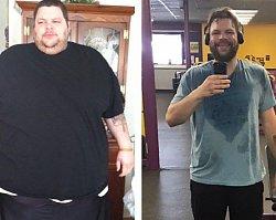 Jak wygląda skóra po zrzuceniu 200 kg? Uwaga! Zdjęcia są naprawdę drastyczne!