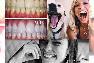 Genialny i tani sposób na wybielanie zębów w 2 minuty - zabłyśnij uśmiechem w te święta!