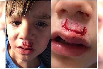 Fidget spinner boleśnie zranił chłopca. Jak? Zobaczcie, co wymyślił jego pomysłowy tatuś