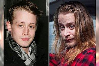 Te gwiazdy były uzależnione od narkotyków. Oto 19 szokujących przykładów na to, co dzieje się z człowiekiem pod wpływem tego uzależnienia! [DRASTYCZNE ZMIANY!]