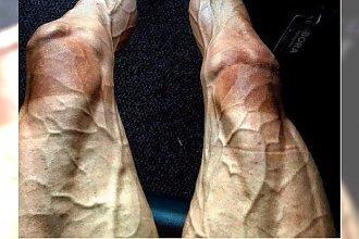 Polski kolarz pokazał PRZERAŻAJĄCE zdjęcie swoich nóg po wyścigu Tour de France