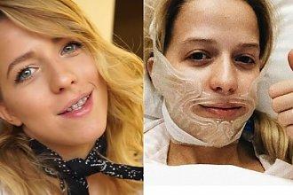 Jessica Mercedes POKAZAŁA TWARZ po operacji żuchwy. Wygląda zupełnie inaczej!