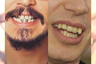 Kto się tak uśmiecha? Oto galeria NAJBRZYDSZYCH lub najdziwniejszych zębów show-biznesu!