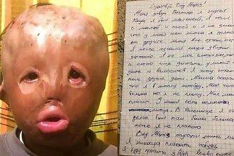 Mały chłopiec z całkowicie poparzoną twarzą ma poruszający list do świętego Mikołaja...