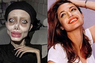 Modelka poddała się kolejnej operacji, by wyglądać jak Angelina Jolie. Te zdjęcia są PRZERAŻAJĄCE!