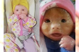 Gdy lekarze zobaczyli dziecko, które przeszło na świat poprzez cesarskie cięcie w sali zapadła cisza...