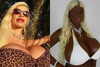 """Biała modelka twierdzi, że """"zmieniła rasę"""" zastrzykami z melaniny! """"Moje dzieci będą CZARNE"""", zapowiada"""