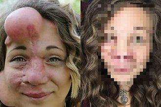 Lekarze zostali zmuszeni wyciąć jej nos, by ratować życie kobiety. Efekt jest zaskakujący!
