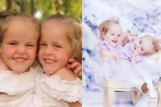Te bliźniaczki syjamskie urodziły się z jedną wątrobą, jedną nerką i jedną parą nóg. Rozdzielono je, są zdrowe i właśnie skończyły 17 lat!