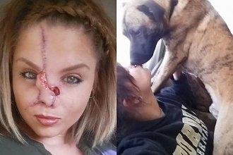 Pies odgryzł jej nos i pozbawił zębów, lecz ona dalej pozwala sobie na poufałości z czworonogami!