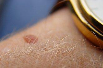 Nowotwór skóry bywa niepozorny. Oto jak go rozpoznać i zapobiec jego powstawaniu