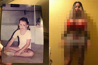 Ta śliczna dziewczynka zmieniła się w potwora. Zapłaciła za operacje plastyczne 400 tysięcy. Prawie umarła przez operację waginy!