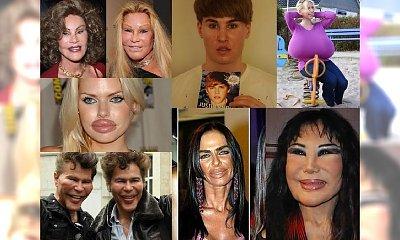 Byli piękni, a teraz niektórzy z nich przypominają postacie z horrorów... Przesadzamy? Oceńcie sami!