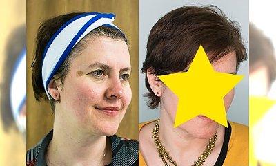 Recenzja zabiegu Derma Peel na przebarwienia i odmłodzenie skóry - zobacz efekty PRZED I PO!