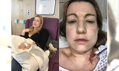 Nie chciała być 'blada jak ściana' w dniu ślubu, a teraz walczy z rakiem i STRASZNIE CIERPI. Co jej tak bardzo zaszkodziło?